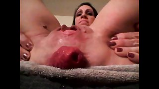 Muscle gape 2015 spreads and prolapse